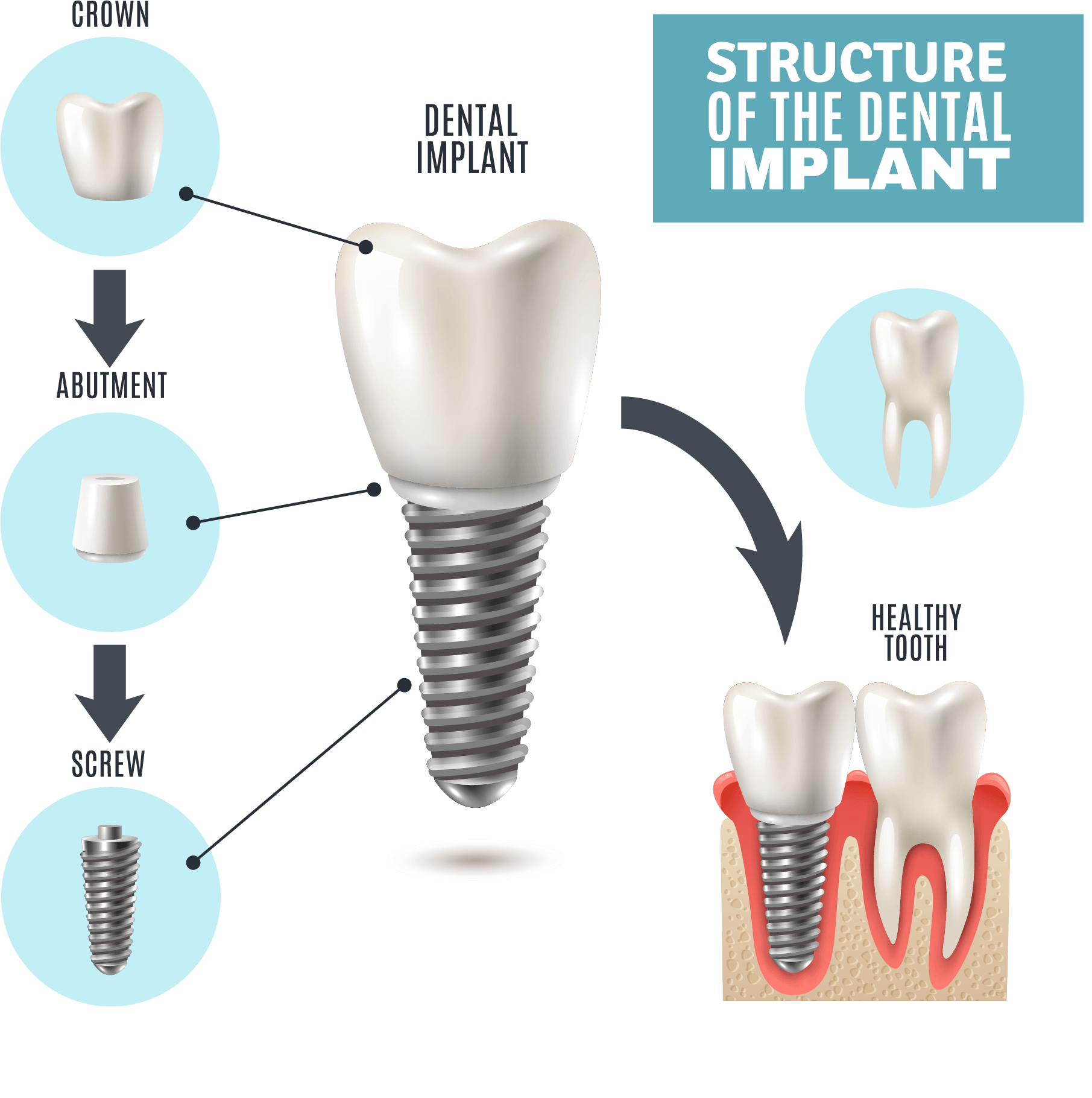 Local Dentists for Dental Implants