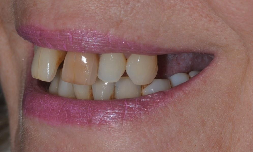 Treatment Gallery | Dorset Dental Implants