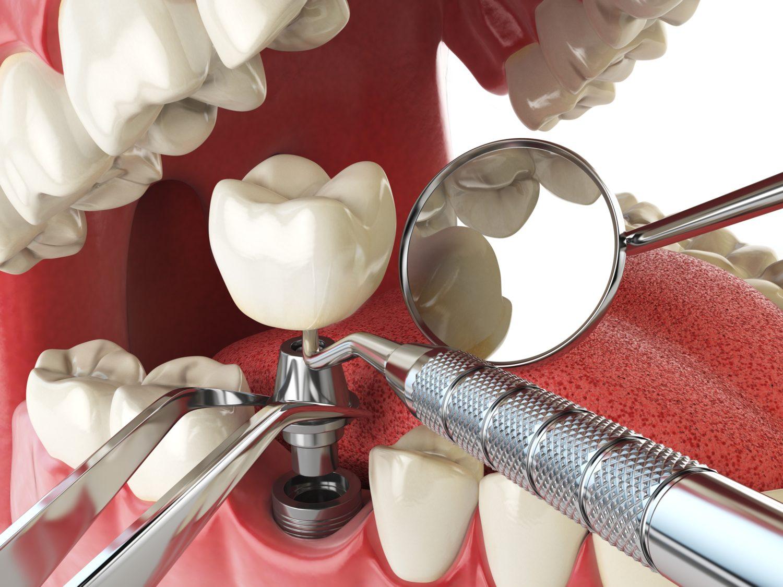 Nano Surface Dental Implant